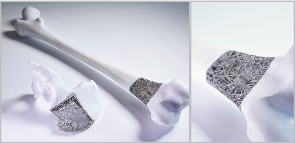 Figure of a model of a bone and pelvis with lattice type titanium implant designed and manufactured at RMIT Centre for Additive Manufacturing.